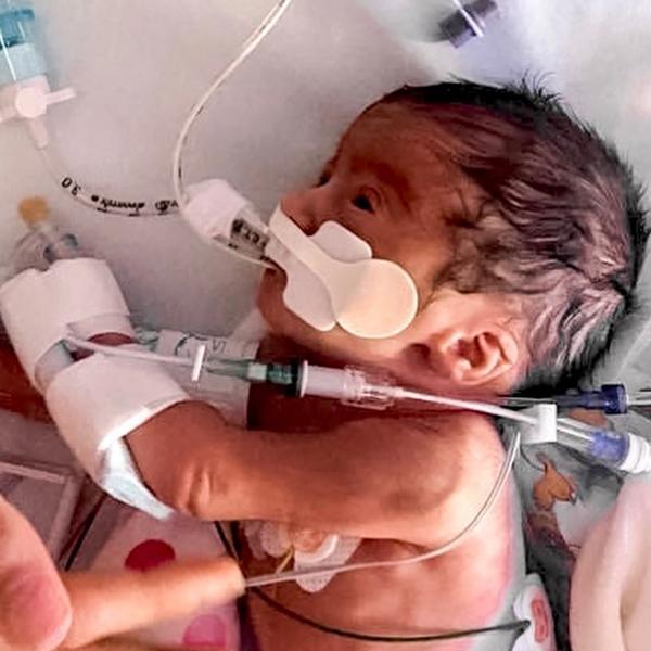 World Prematurity Day – My Story